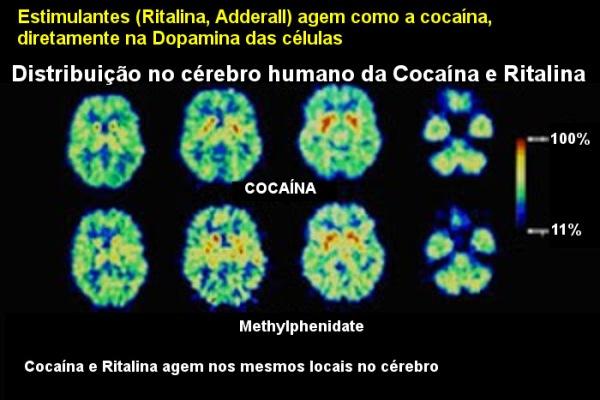 Resultado de imagem para USO ABUSIVO DE RITALINA E OUTRAS DROGAS QUE SUPOSTAMENTO AUMENTAM A INTELIGÊNCIA E CONCENTRAÇÃO TRAZEM RISCOS GRAVES PARA A SAÚDE