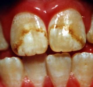 Resultado de imagem para imagens sobre o flúorose